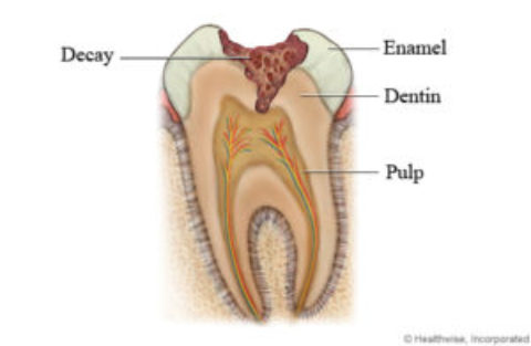 Tooth Decay is a Disease