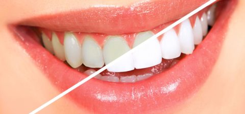 Teeth Whitening Tips and Services in Virginia Beach