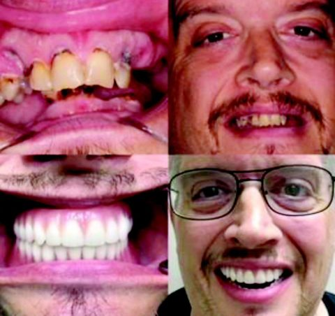 Thankful For TEETH, Are You?